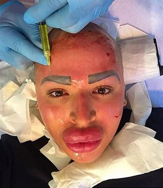 Le fan fou de Kim Kardashian poste un nouveau cliché effrayant, visage injecté de sang et lèvres surgonflées (photo) 119