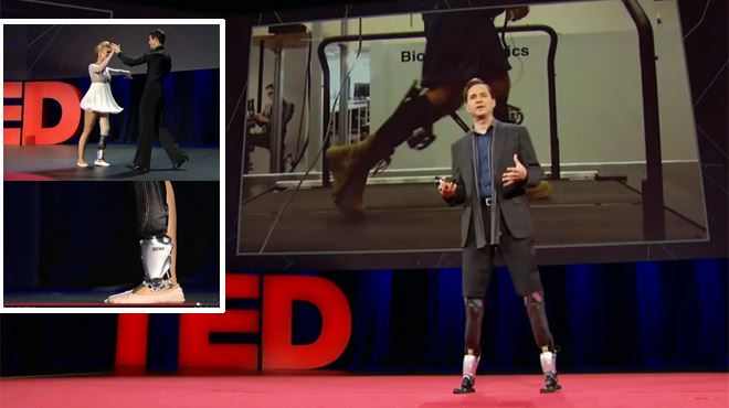 Amputé, il crée ses propres jambes- Elles réagissent comme des muscles vivants (vidéo) 8