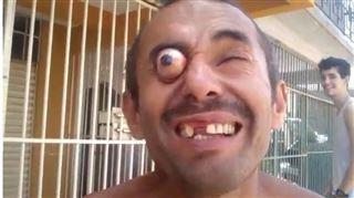 Effrayant- cet homme sort ses yeux de ses globes sur commande (vidéo) 26