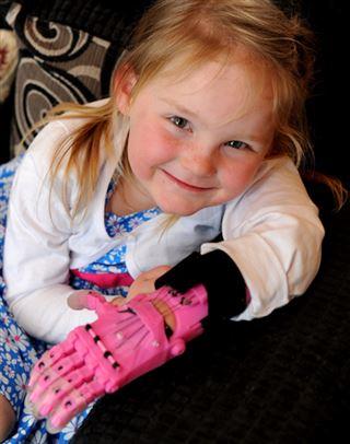 Cette petite fille de 4 ans a une nouvelle main toute rose, imprimée en 3D (photos) 24