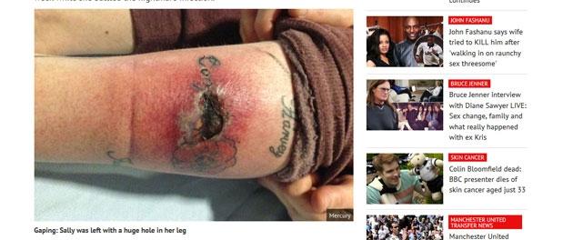 horreur le mollet de sally s infecte cause d un tatouage en l 39 honneur de ses 5 petits enfants. Black Bedroom Furniture Sets. Home Design Ideas