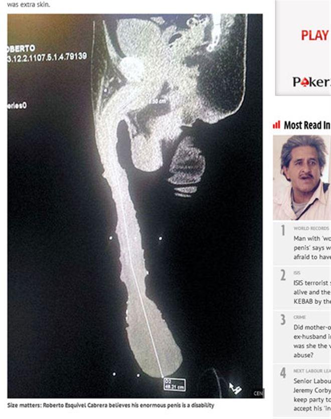 Roberto, l'homme au pénis le plus long du monde, vit un véritable enfer- Je ne peux rien faire! (photo) 1